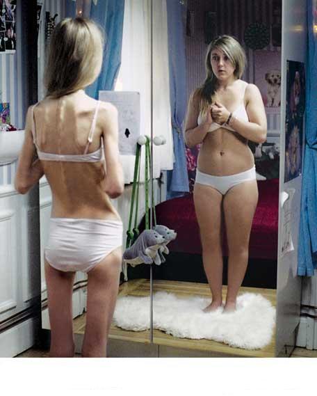 causas de la bulimia. La Organización